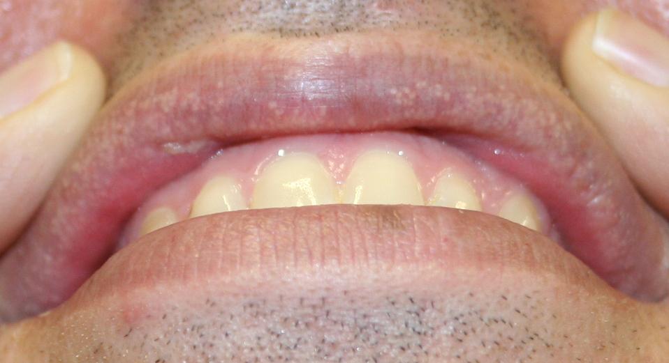 Herpes On Lip  Herpes Info-8215