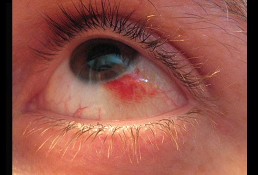 Herpes and the Eye | Eyes and Vision Specialist - Optometrist ...