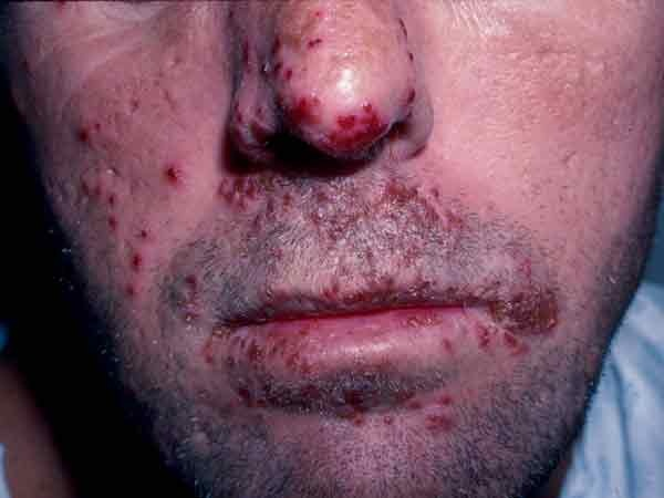 Herpes i