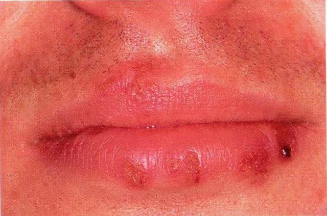 Mild herpes lesion